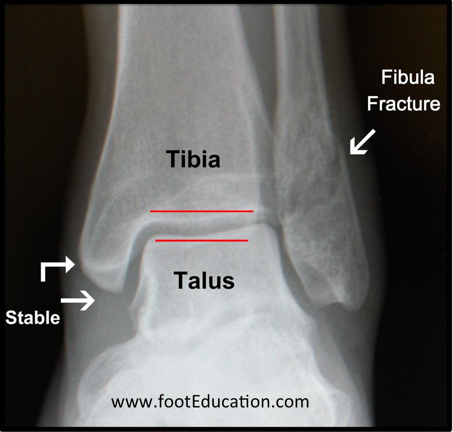 Ankle Fractures (Tibia and Fibula)   OrthoPaedia