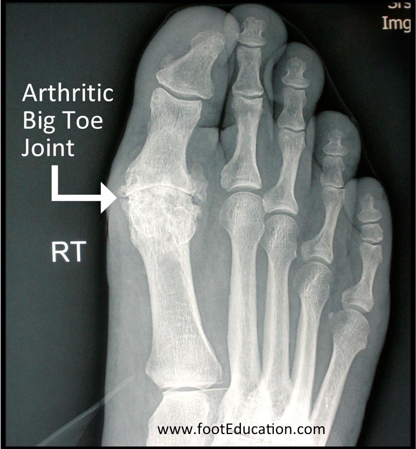 Disorders Of The Great Toe Orthopaedia