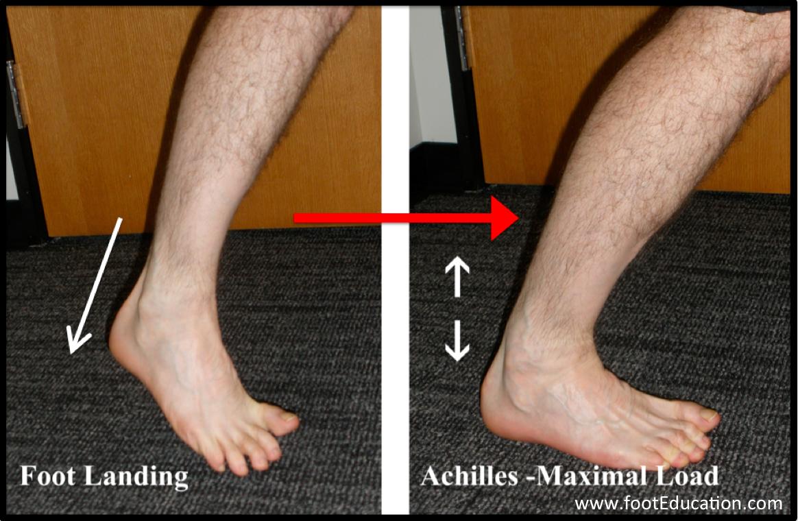 Achilles Tendon Rupture Orthopaedia