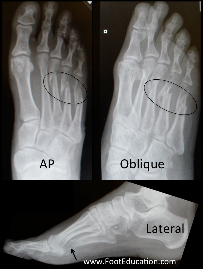 Metatarsal Fractures | OrthoPaedia