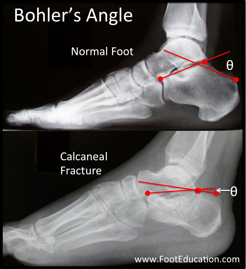 Hindfoot Fractures   OrthoPaedia